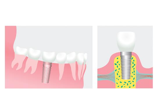 Så fungerar tandimplantat