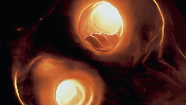 Ultraljud kan identifiera patienter med risk för stroke