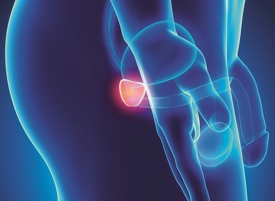 Förstorad prostata – en del av åldrandet