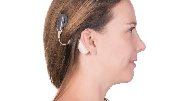 Hörselimplantat hjälper även långtidsdöva