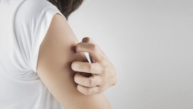 Hudsvamp – ett vanligt besvär