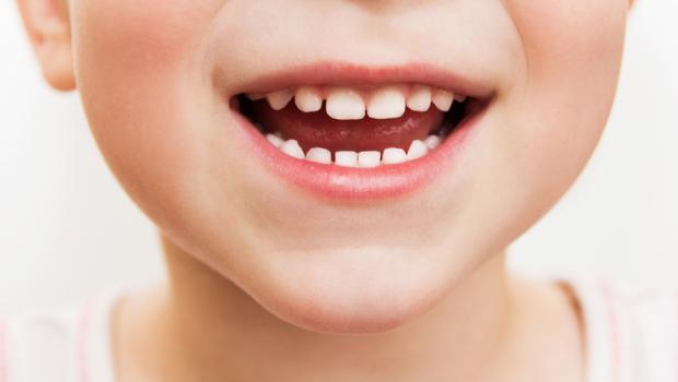 frätskador-på-tänderna-blir-allt-vanligare