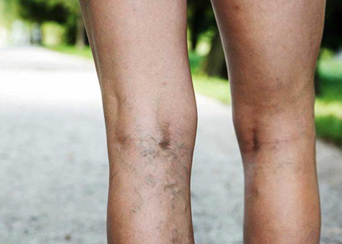 Åderbråck i benen